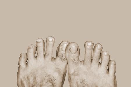 Bad healthy care feet in sepia tone Stock Photo
