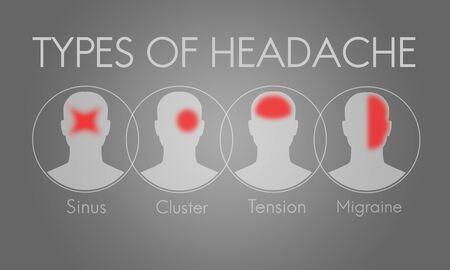 頭痛症状片頭痛緊張クラスター概念