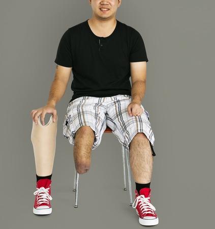 amputation: Disability Young Man with Prosthesis Leg Studio Portrait