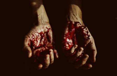 심한 부상을 입은 피 묻은 손 스톡 콘텐츠