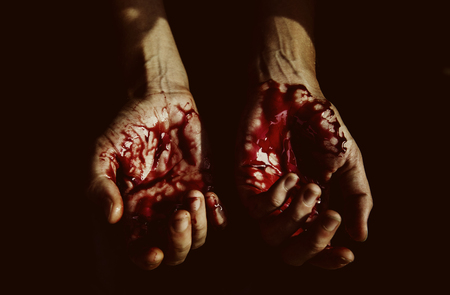 Severely injured bloody hands Stock Photo