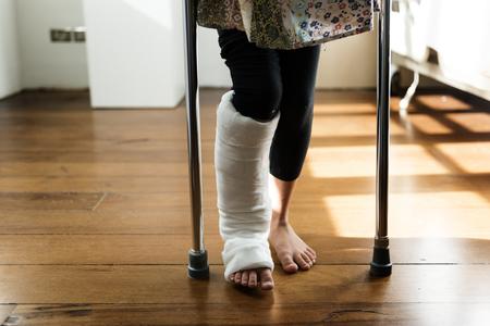 Jeune, caucasien, fille, à, jambe cassée, dans, plâtre Banque d'images - 89612755