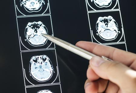 Close-up van MRI-scanresultaat van de hersenen