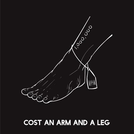 Kosten einen Arm und ein Bein Standard-Bild - 98632353