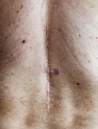 Elderly person back surgery scar Stock Photo