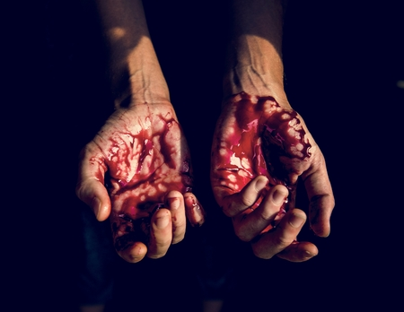 Bloody hands with black background Stock Photo