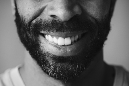 Closeup of smiling teeth of a man