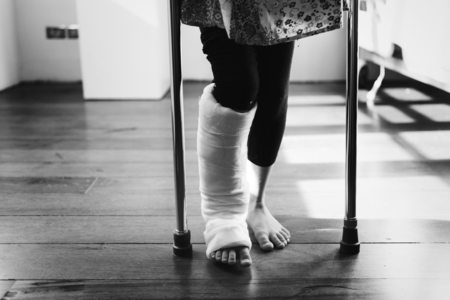 Young girl with a broken leg Banque d'images - 106367610