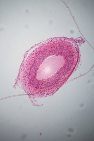 Vein section under the microscope