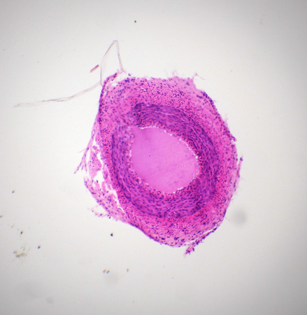 endothelium: Artery section under the microscope