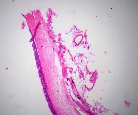 Biopsia: Ciliatde sección epitelio bajo el microscopio
