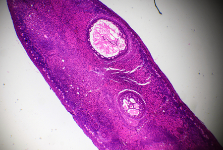 Ovary section under the microscope Stock Photo