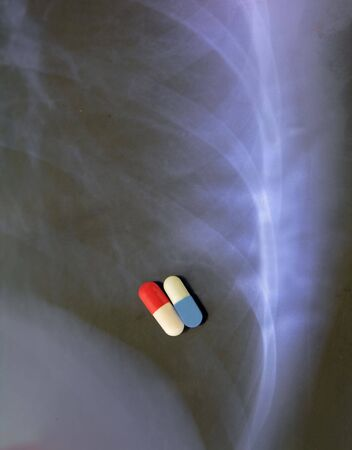 bacteria antibiotic: Abstract image of two types of antibiotic capsules over a pulmonary radiography background.It can suggest idea of combine antibiotic therapy in pulmonary diseases.