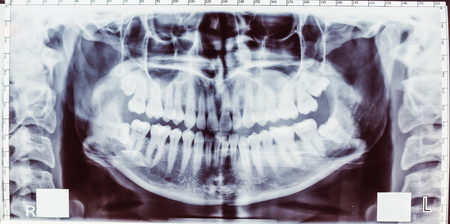 molares: Imagen de la radiograf�a panor�mica de dientes. Problema con la muela del juicio.