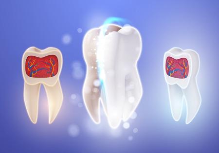 Illustration of 3D Realistic Teeth Cleaning Process. Ilustracja
