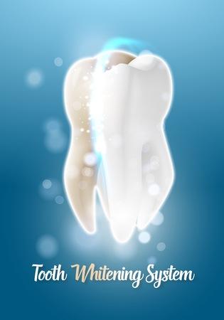 Illustration of Teeth Cleaning Healthcare Stomatology Procedure.