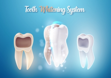 Illustration of 3D Realistic Teeth Cleaning Process. Healthcare Stomatology Procedure