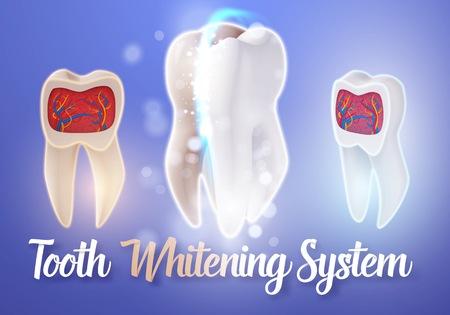 Illustration of Teeth Whitening System.