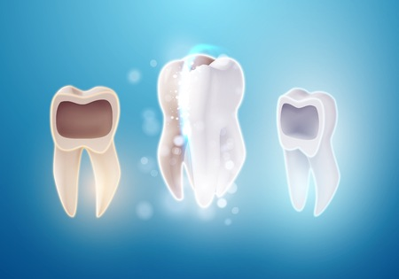 Illustration of 3D Realistic Teeth Cleaning Process. Vector Tooth Cleaning Treatment. Healthcare Stomatology Procedure