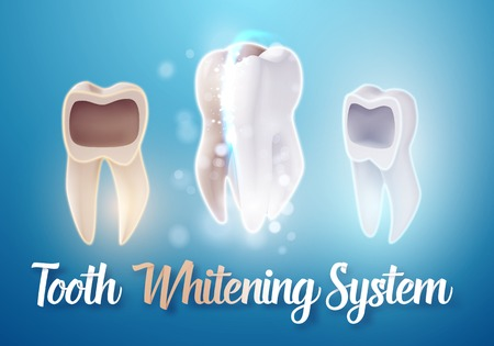 Illustration of Teeth Whitening System. 3D Realistic Tooth Cleaning Process Illustration