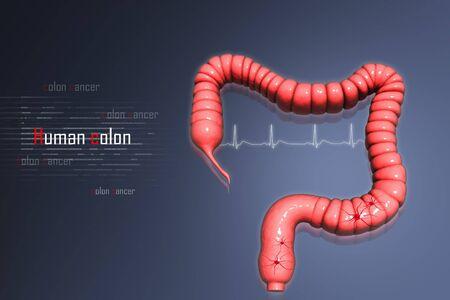 colon cancer: Colon cancer  Stock Photo