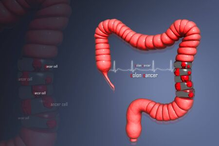 colon: Colon cancer  Stock Photo