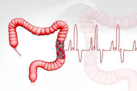 digestive health: Colon cancer  Stock Photo
