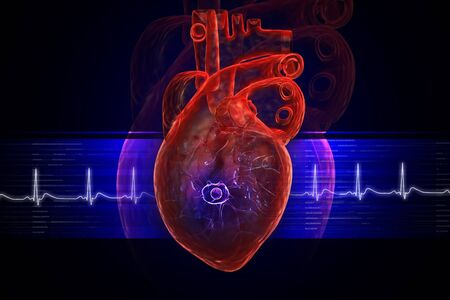 Heart attack view Stock Photo