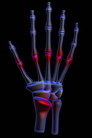 3d human: dolor de mano humana 3D  Foto de archivo