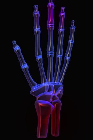 3d human hand pain Stock Photo - 8948137