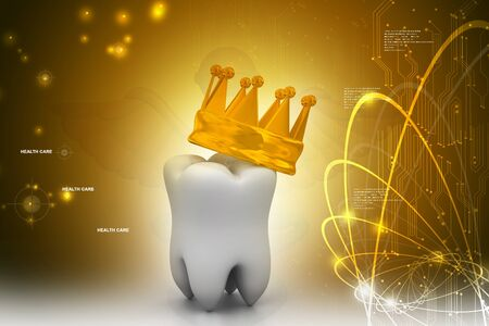 carious: tooth In Golden Crown