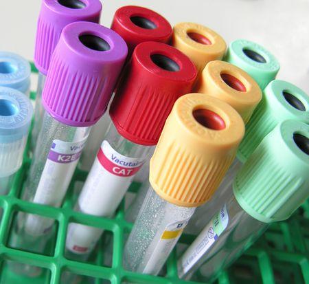 blood tubes Reklamní fotografie