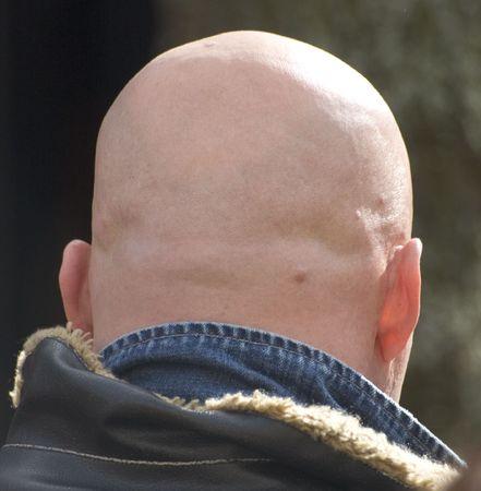 occiput: head
