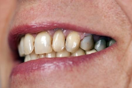 Macto zubu Ženy Reklamní fotografie - 11870746
