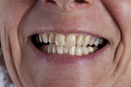 mouth of an oder woman Reklamní fotografie