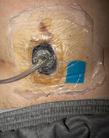Injured abdomen with blood Reklamní fotografie
