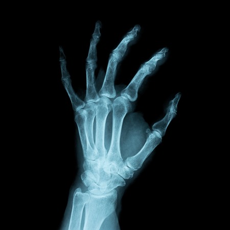 Imagen de rayos x de una mano humana izquierda Foto de archivo - 71829380