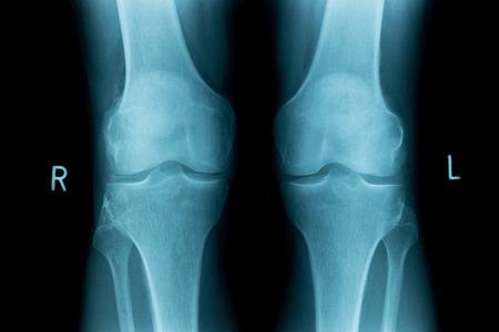 x-ray image of Both human knee Reklamní fotografie