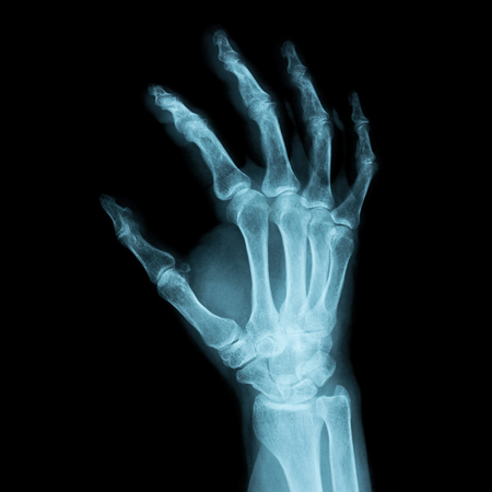 x-ray image of a human right hand for a medical diagnosis