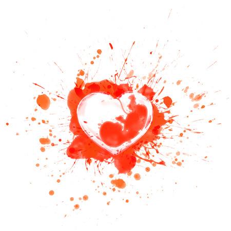 embrion: Salpicaduras rojas con sangre y el coraz�n deportivo con embri�n humano en el interior - ilustraci�n vectorial Vectores