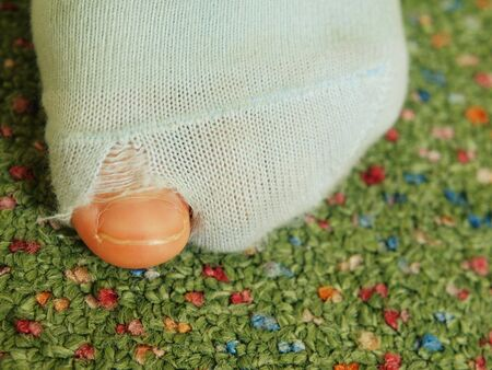 torn stockings: Child wearing dirty socks with holes in the big toe. Leg on green carpet Stock Photo