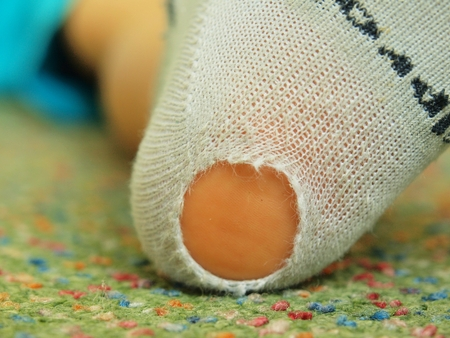 torn stockings: Child wearing dirty socks with holes in heel. Leg on carpet
