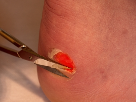 Scissors cut dry skin at  cracked bloody blister on heel. A very painful place with torn skin,  bloody and wetted wound with skin tresses. Stock Photo