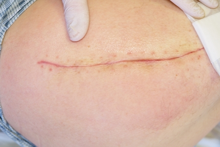 Patient with fresh long scar on hip lay in hospital bad. Nurse hand clear the skin. Hospital health care
