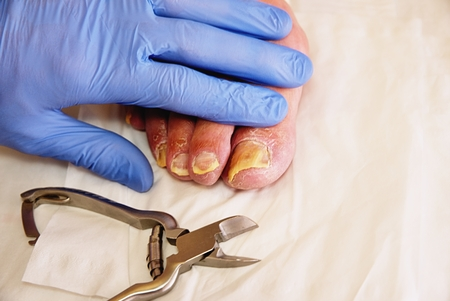 Pedicurist hands in  sterile gloves cut nails and cuticles closeup . Hardware manicure. Concept body care.