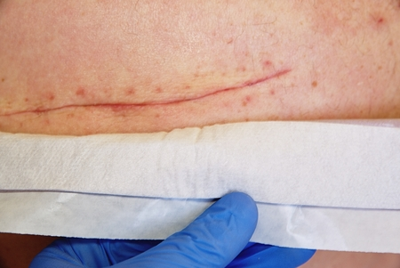 Fresh scar after  surgical surgery of 65 years old patient.  Long deep cut on the body treated by massage grease