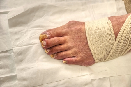 Hospital manicurist with pedicure pliers trimming old person toenail.  Ill nails lift away from its nail bed