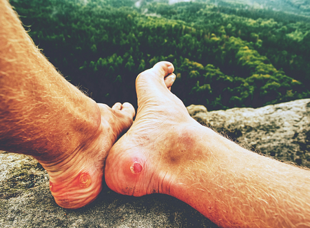 Man hiker sweaty legs with horrible painful callus resting on mountain peak. Misty rocky landscape  with a valley at background