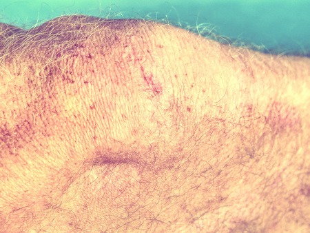 Pink scar on the human skin.  Scar on human burned skin from abrassion scald selective focus.   Hipster filter.