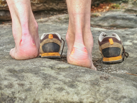 Man hiker legs without trousers and hiking boots on mountain peak